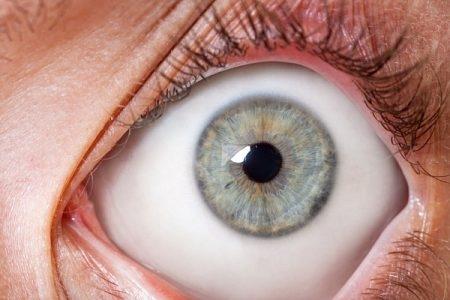 ترهلات الجفون ، صورة ، Slouch eyelids ، عين
