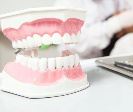 صورة , أسنان , تبييض الأسنان , طب الأسنان