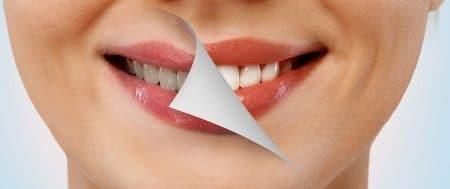 تبييض الأسنان ، Teeth whitening ، صورة ، أسنان