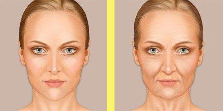 تجميل الجلد ، الطاقة الحرارية ، عمليات التجميل ، المراكز التجمياية