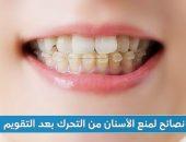 نصائح لمنع الأسنان من التحرك بعد التقويم