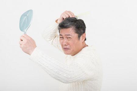 تساقط الشعر،صورة،رجل