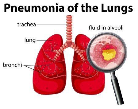 السل الرئوي ، الامراض التنفسية ، الجهاز التنفسي ، الالتهاب الرئوي