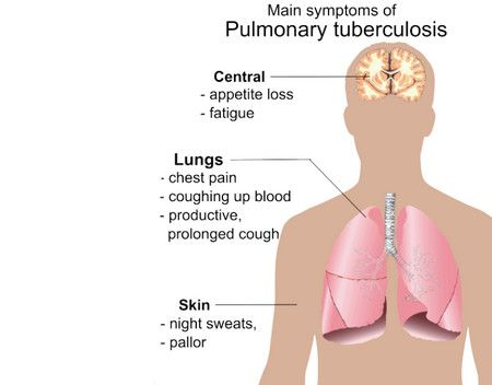 Tuberculosis،السل الرئوي،صورة