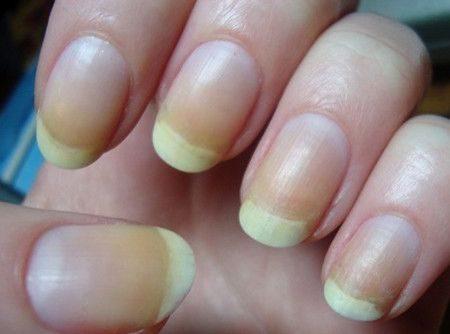 متلازمة الظفر الأصفر