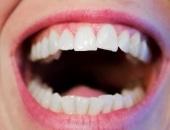 علاج , اصفرار الأسنان , صورة