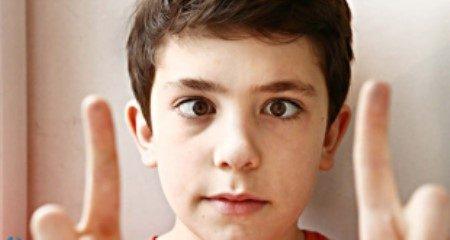 حول العين ، أمراض العين ، العين المنحرفة ، العين والأطفال