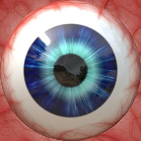 اللطخة الصفراء ، اعتلالات العين ، أمراض العين