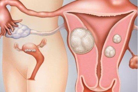الورم الليفي ، بطانة الرحم ، الدورة الشهرية