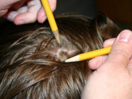 قمل ، الشعر التالف ، أمراض الشعر ، العناية بالشعر