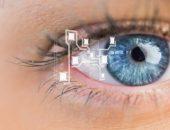 الأكياس الدهنية ، مشاكل العيون ، اعتلالات العين ، قطرة العين