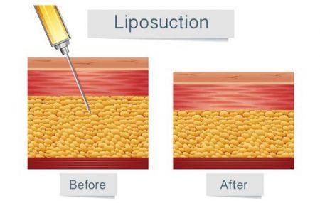 صورة , عملية شفط الدهون , إذابة الدهون
