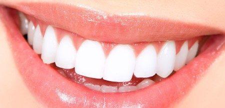 توريد الشفاة ، التهابات اللثة ، صحة الأسنان ، ابتسامة هوليود