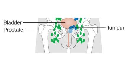 البروستاتا،prostate،صورة