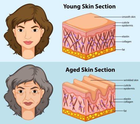 شد الجلد ، العناية بالبشرة ، السليوليت ، ترهلات الجلد
