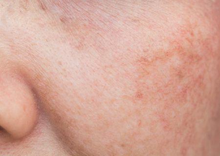 صورة , بشرة , التصبغات الجلدية