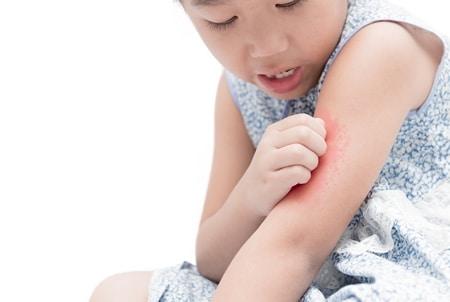 صورة , جلد الإنسان , الأمراض الجلدية , الصيام