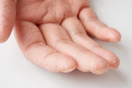 صورة , الأمراض الجلدية , التصبغات الجلدية , علاج التصبغات