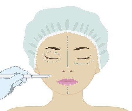 الخطأ الطبي ، الجراحات التجميلية ، تجميل البشرة ، الجراحات التجميلية ، مراكز التجميل