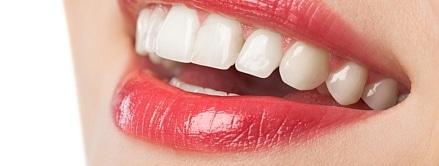صورة , أسنان , أسنان المرأة , فقد الأسنان