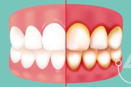 اللثة ، الأسنان ، التهابات اللثة ، خلع الأسنان