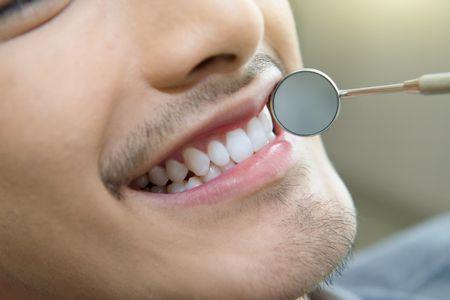 صورة , تجميل الأسنان , طب الأسنان