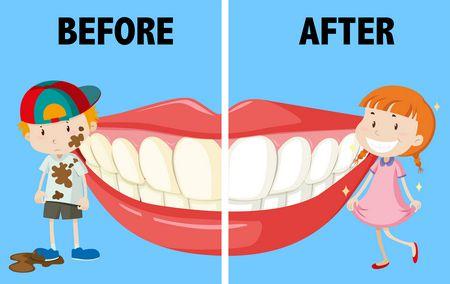 صورة , صحة الأسنان , تجميل الأسنان