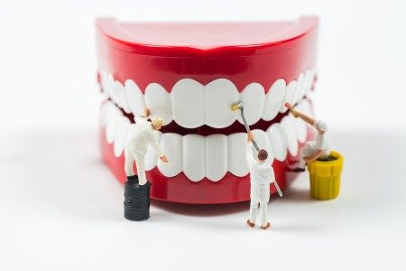تركيبات الأسنان ، الأطقم الثابتة ، الأطقم المتحركة ، تنظيف الأسنان