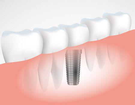 صورة , زراعة الأسنان , أسنان