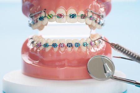 صورة , تقويم الأسنان , مثبت التقويم , أسنان