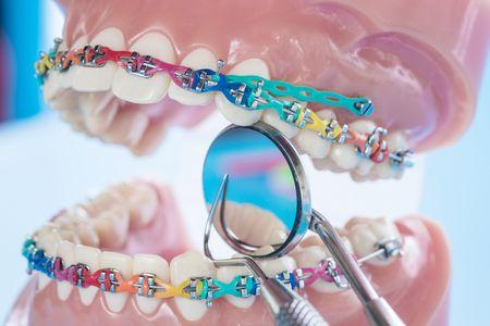 صورة , تقويم الأسنان , عدسات الأسنان اللاصقة