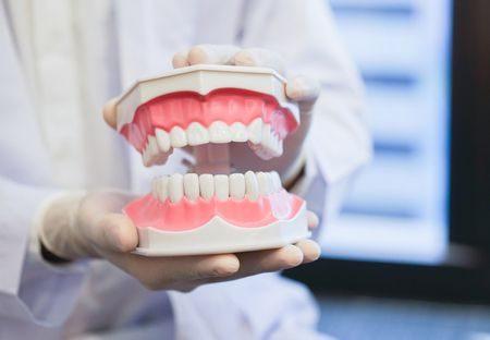 قشور الأسنان , الأسنان الخزفية , teeth , صورة