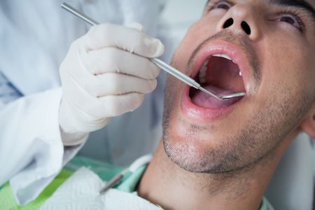 صورة , رجل , طبيب , أسنان , سحب العصب
