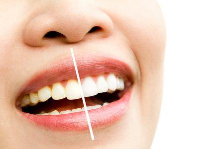 صورة , الإبتسامة الهوليوودية , تجميل الأسنان