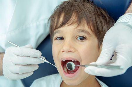 صورة , ألم الأسنان , العصب الخامس