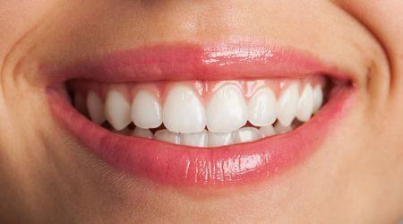 صورة , القشور الخزفية , تجميل الأسنان