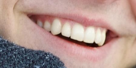 الأسنان،teeth،صورة