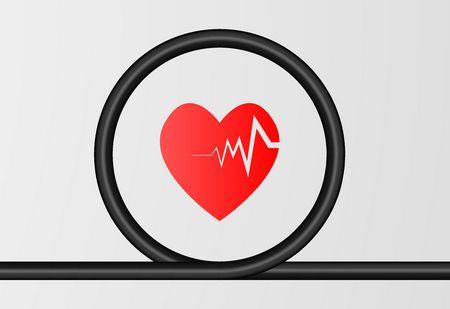اعتلال نظم القلب