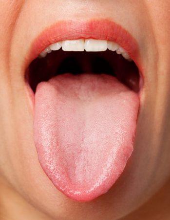 فطريات اللسان ، نظافة الفم ، اللسان ، تنظيف الفم