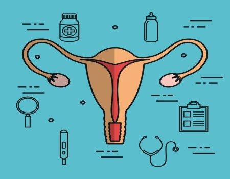 دوالي الرحم ، أمراض الرحم ، ألياف الرحم ، المبايض ، تكيس المبيض
